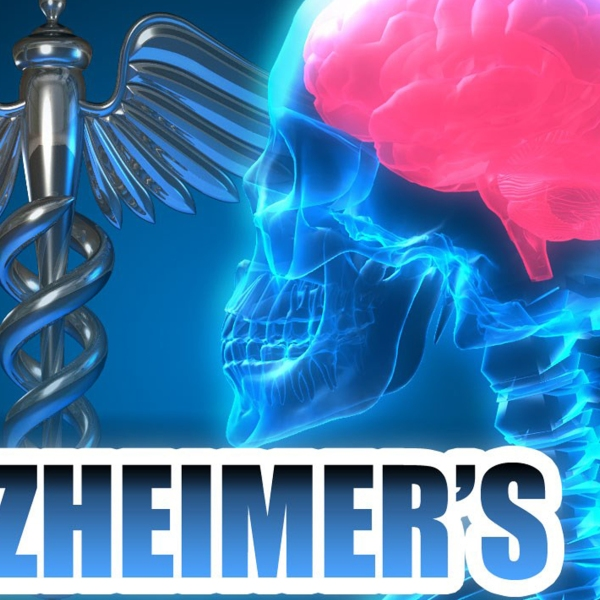 Alzheimers FOR WEB_1465384938317.jpg
