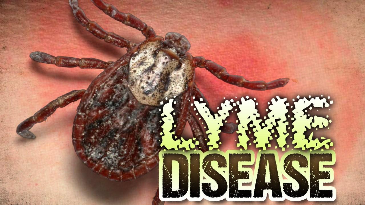lyme disease_1494871482625.jpg