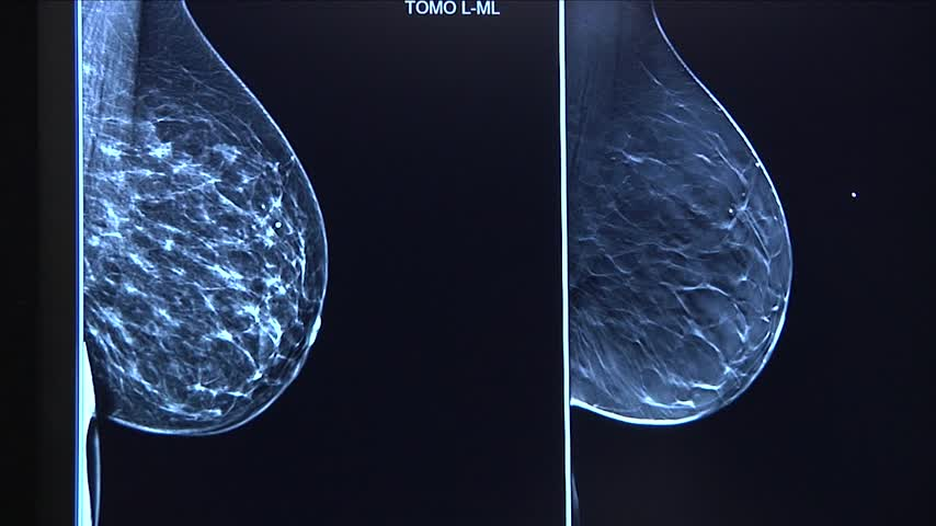 Guthrie Catching Breast Cancer At Earlier Rates Thanks To 3d