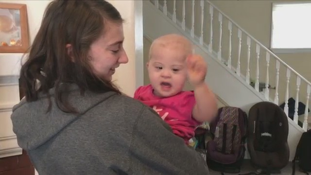 Baby_with_Down_syndrome_diagnosed_with_c_0_20180210001401