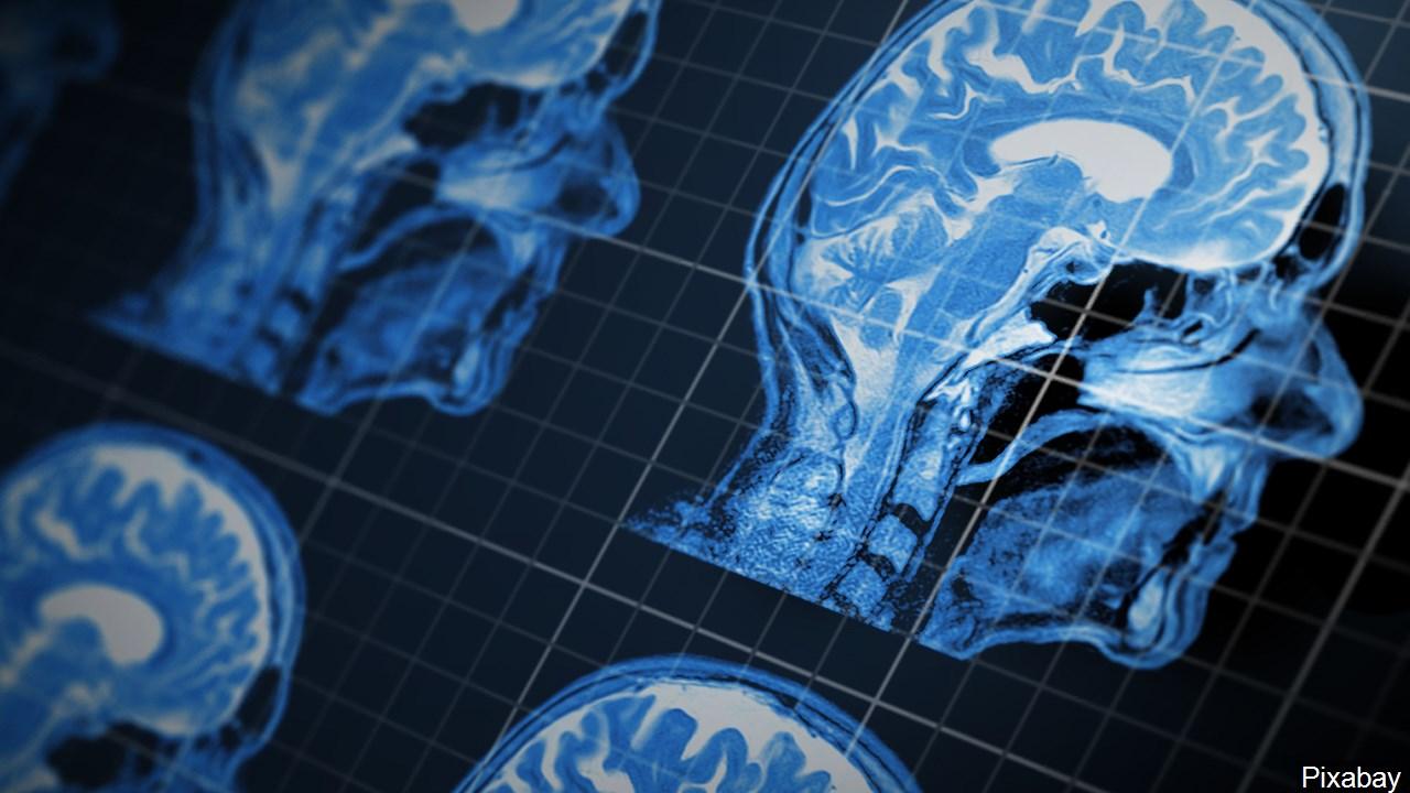 Brain MRI.jpg